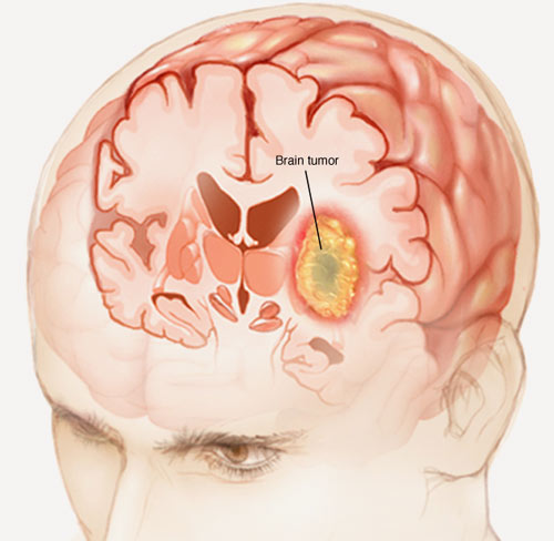 Treating tumors in the base of the skull