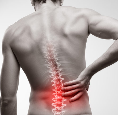 Incorrect Back Posture And Back Pain
