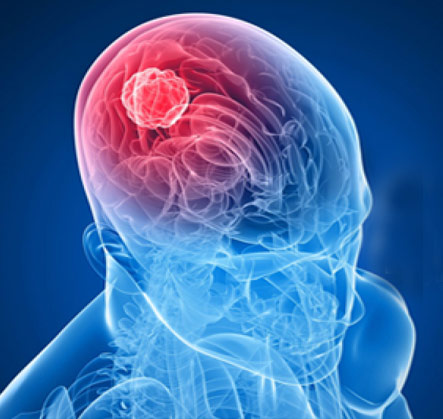 Brain Tumor Surgery In Gurgaon, Haryana