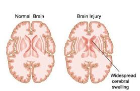 Causes of Head Injury or Traumatic Brain