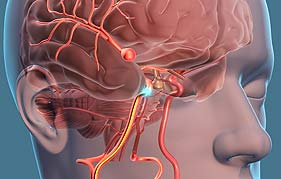 Brain Aneurysm Repair In Gurgaon